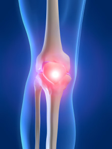 arthritis treatment Toronto