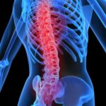 Top 10 Reasons to Get Your Spine Checked
